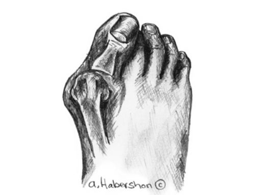 Foot deformity and Bunions – Prevention and managing